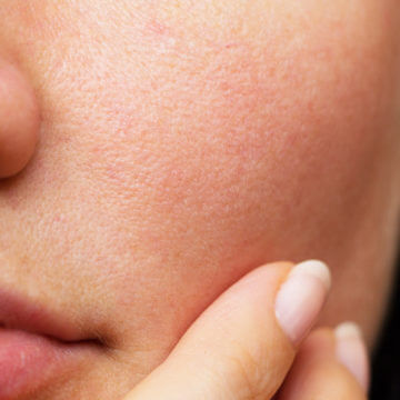 How to Make Your Pores Smaller [QUICK GUIDE]